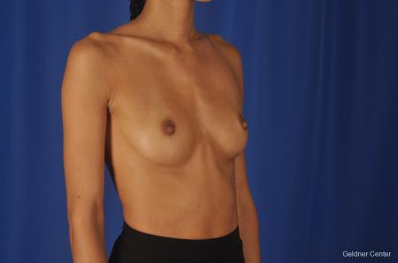 Breast Augmentation: Patient 84 - Before Image 3