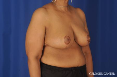 Breast Reduction: Patient 25 - After Image 2