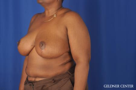 Chicago Breast Reduction 11871 -  After Image 4