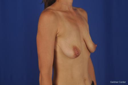 Breast Lift: Patient 45 - Before Image 2
