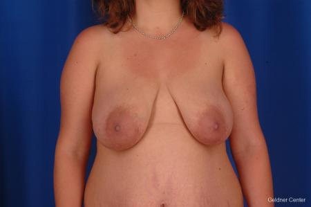 Complex Breast Augmentation Hinsdale, Chicago 2300 - Before Image
