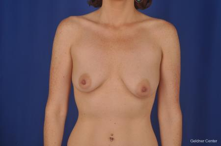 Chicago Breast Lift 2401 - Before Image 1