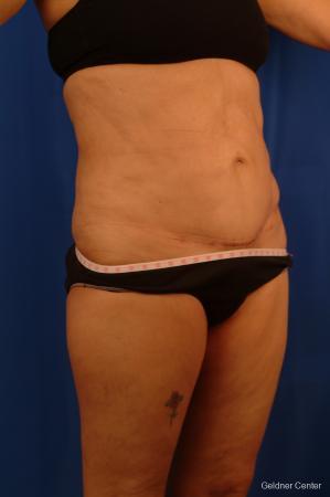 Liposuction: Patient 18 - After 3