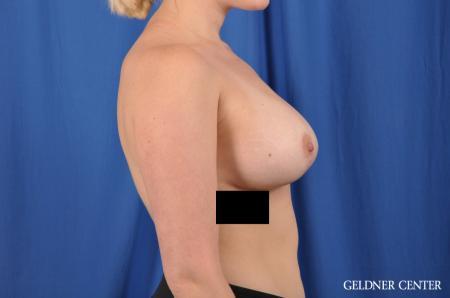 Breast Augmentation: Patient 147 - After Image 3