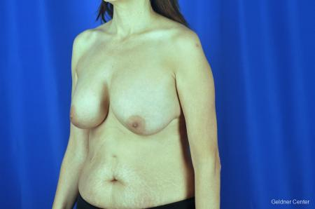 Breast Augmentation: Patient 5 - Before and After Image 4