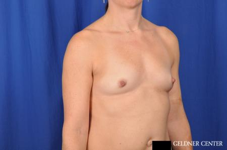 Breast Augmentation Lake Shore Dr, Chicago 4286 - Before Image 2