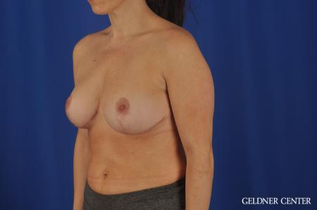 Breast Reduction Hinsdale, 4287 -  After Image 4