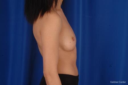 Chicago Breast Augmentation 2339 - Before Image 2