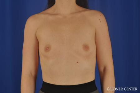 Chicago Breast Augmentation 8760 - Before Image 1
