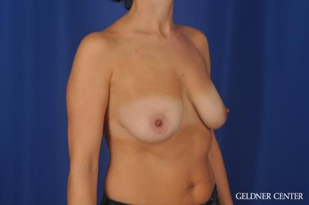 Breast Lift: Patient 48 - Before Image 2
