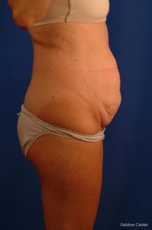 Liposuction: Patient 11 - Before Image 3