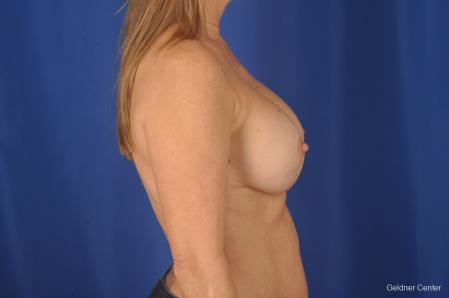 Breast Augmentation: Patient 158 - After 3