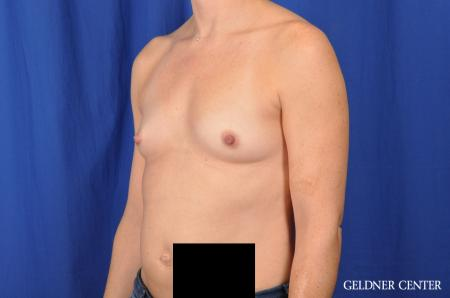 Breast Augmentation Lake Shore Dr, Chicago 4286 - Before and After Image 4