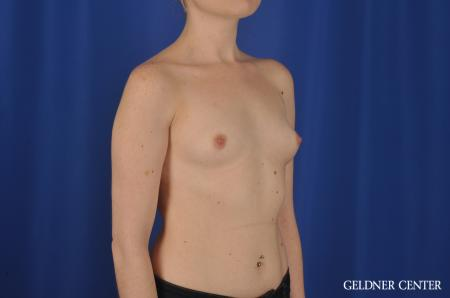 Breast Augmentation: Patient 137 - Before Image 3