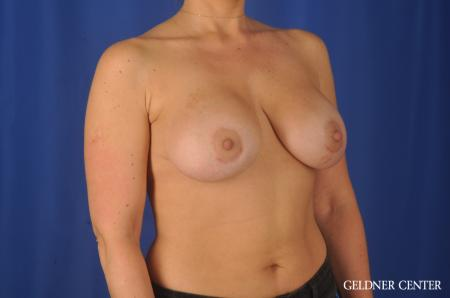 Breast Augmentation: Patient 80 - After Image 3