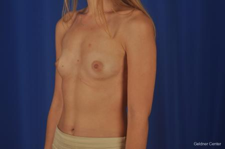 Breast Augmentation: Patient 149 - Before and After Image 4