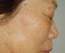 Laser: Patient 3 - After Image
