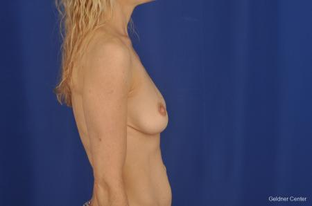 Breast Augmentation Lake Shore Dr, Chicago 2309 - Before Image 2