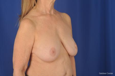 Complex Breast Augmentation: Patient 2 - Before Image 2