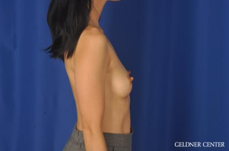 Breast Augmentation: Patient 176 - Before Image 3