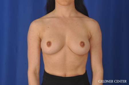 Breast Augmentation: Patient 145 - Before Image 1