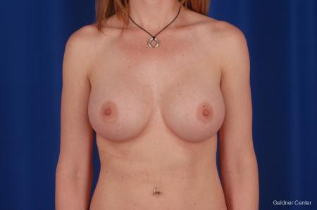 Chicago Breast Augmentation 2634 -  After Image 1