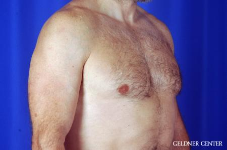 Gynecomastia: Patient 9 - After Image 3