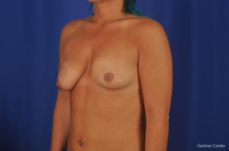 Breast Augmentation Hinsdale, Chicago 2335 - Before and After Image 5