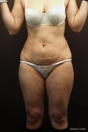 Tummy Tuck: Patient 8 - Before Image 1