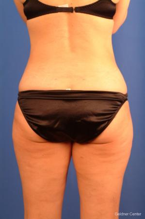 Vaser lipo patient 2520 before and after photos -  After Image 4