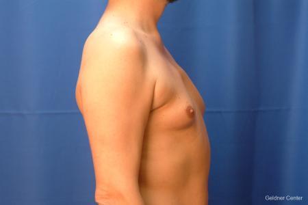 Gynecomastia: Patient 6 - Before Image 2