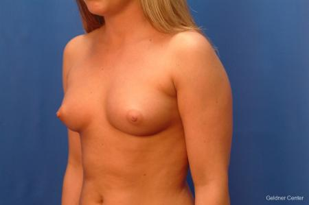 Chicago Breast Augmentation 2443 - Before and After Image 4