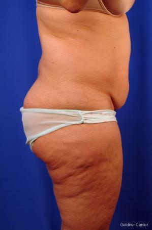 Liposuction: Patient 10 - Before Image 2