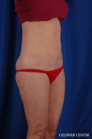 Tummy Tuck: Patient 36 - After Image 2