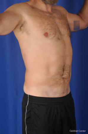 Liposuction For Men: Patient 7 - After Image 2
