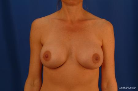 Breast Augmentation Lake Shore Dr, Chicago 2446 -  After Image 1
