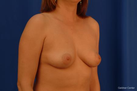Chicago Breast Augmentation 2532 - Before Image 3