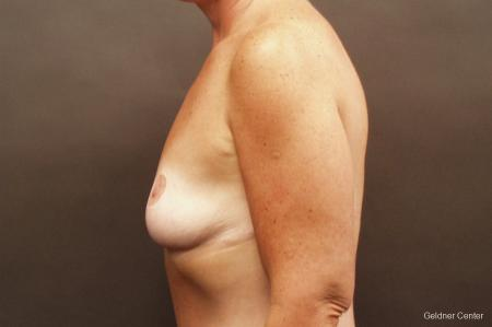 Chicago Breast Augmentation 2524 - Before and After Image 4