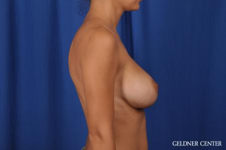 Breast Augmentation: Patient 134 - After 2