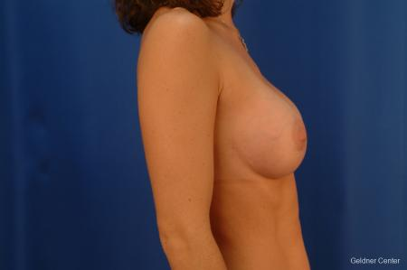 Chicago Breast Augmentation 2442 -  After Image 2