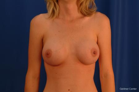 Breast Augmentation Streeterville, Chicago 2530 -  After Image 1