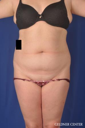 Liposuction: Patient 45 - Before Image 1