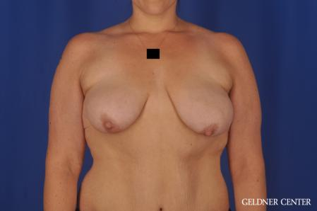 Breast Augmentation: Patient 161 - Before 1