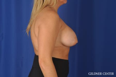 Breast Augmentation: Patient 179 - After Image 3