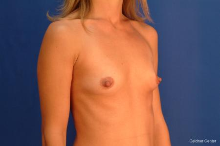 Breast Augmentation Hinsdale, Chicago 2510 - Before Image 3