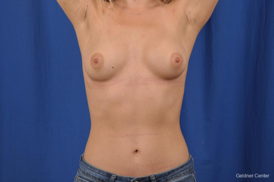Breast Augmentation: Patient 149 - Before and After Image 5