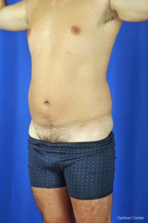 Liposuction For Men: Patient 4 - Before and After Image 5