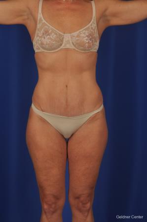 Lipoabdominoplasty: Patient 2 - After Image
