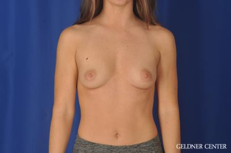 Breast Augmentation: Patient 139 - Before Image 1