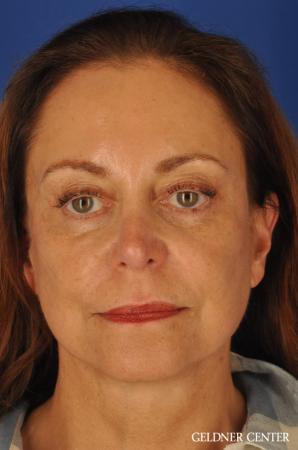 Facelift & Neck Lift: Patient 1 - After Image